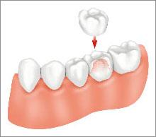 Corone Dentali | Dentisti Croazia