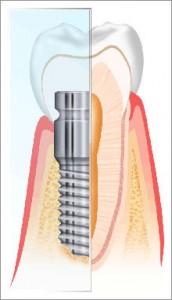 Impianto Dentale | Dentisti Croazia