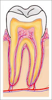 Devitalizzazione Del Dente | Dentisti Croazia
