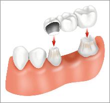 Ponti E Impianti Dentali | Dentisti Croazia