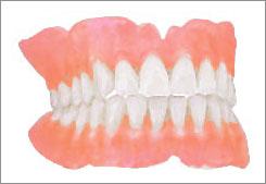 Sbiancamento Dei Denti | Dentisti Croazia