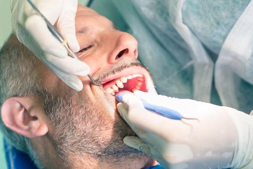 devitalizzazione denti croazia