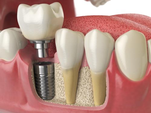 impianti dentali croazia