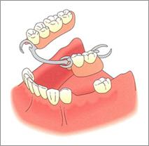 protesi dentale mobile