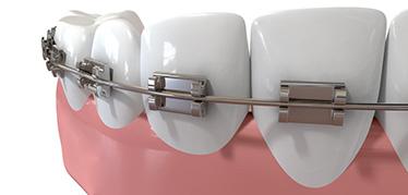Apparecchio fisso | Dentisti Croazia